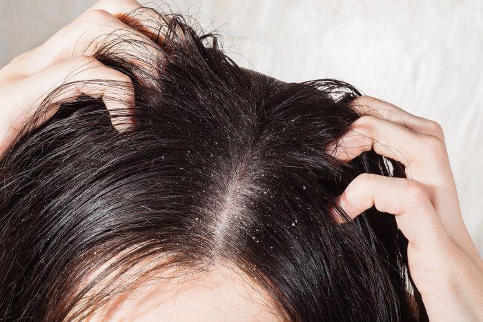 перхоть в волосах причины